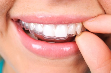 Invisalign Clear Orthodontic Aligners, Medicine Hat Dentist